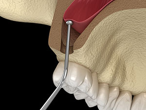 Sinus lift at Brush & Floss Dental Center